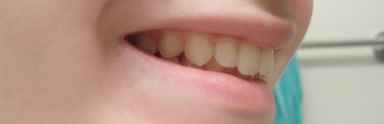 teeth after side